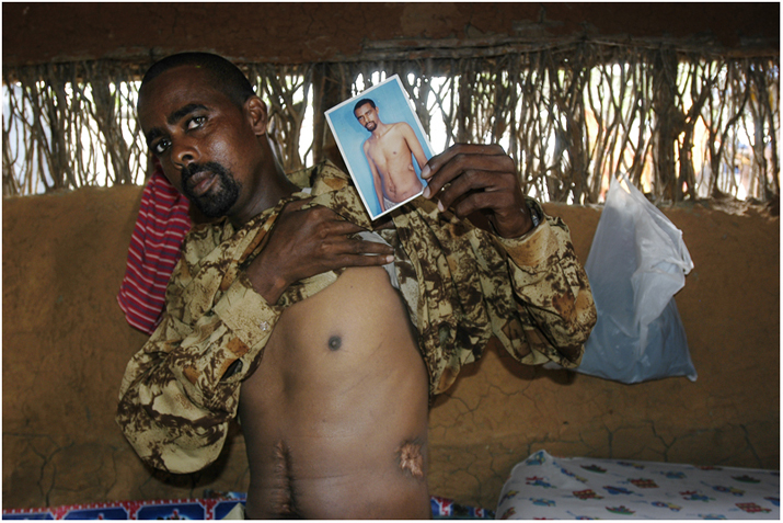 A man from the Ogaden shows his wounds after being tortured.